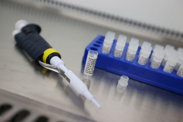 Outbreak of the coronavirus disease (COVID-19) in Keele